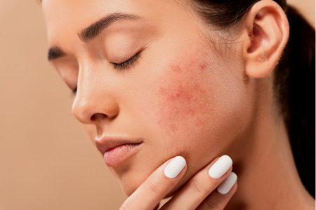 Kiedy udać się do dermatologa? Trądzik, alergia i inne przyczyny